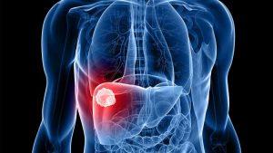 Imunisasi Hepatitis B melindungi liver Anda terserang virus penyebab Hepatitis B
